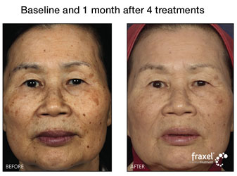 fraxel treatment