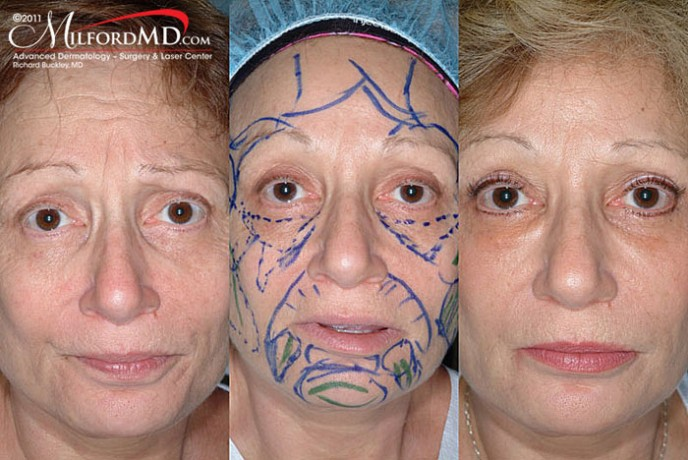 Fat Grafting Before And After - Milford Md, Milford, Pa-6171