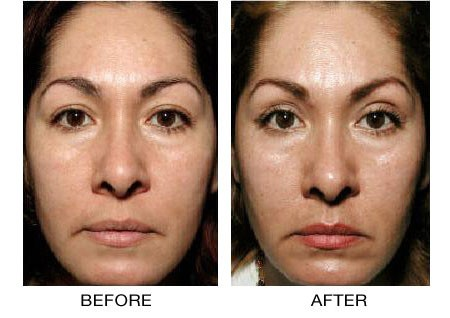 Thermage Thermacool skin tightening treatments, PA NJ and NY