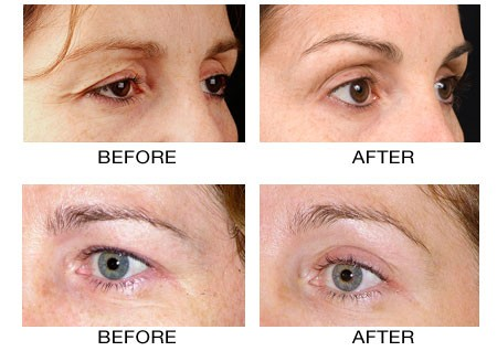 Thermage Thermacool Skin Tightening Treatments Pa Nj And Ny